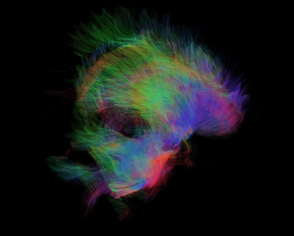 DTI scan of dolphin brain Professor G Berns